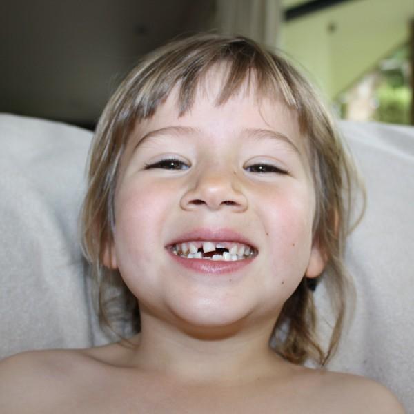 Bye bye third milk tooth